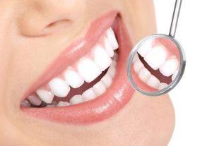 Dental Crowns Anchorage