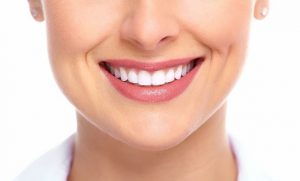 Teeth Whitening in Anchorage
