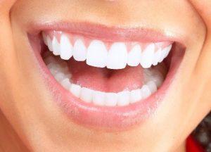 Anchorage Restorative Dental Procedures