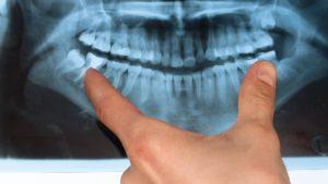 medium_restorative-dentistry-after-extraction