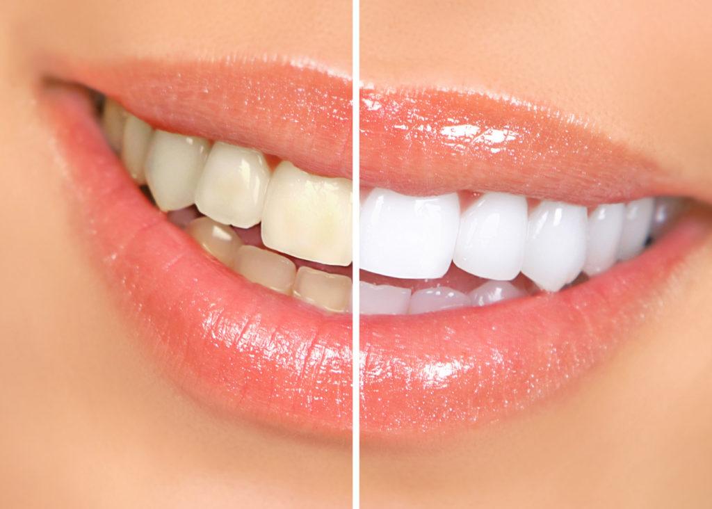 In-Office Teeth Whitening Benefits